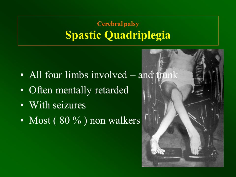 Cerebral palsy Spastic Diplegia - Hip Flexion Deformity Indication for surgery Hip flexion deformity never decrease by physiotherapy – orthoses – sleeping prone … Hip flexion deformity > 20 needs surgery