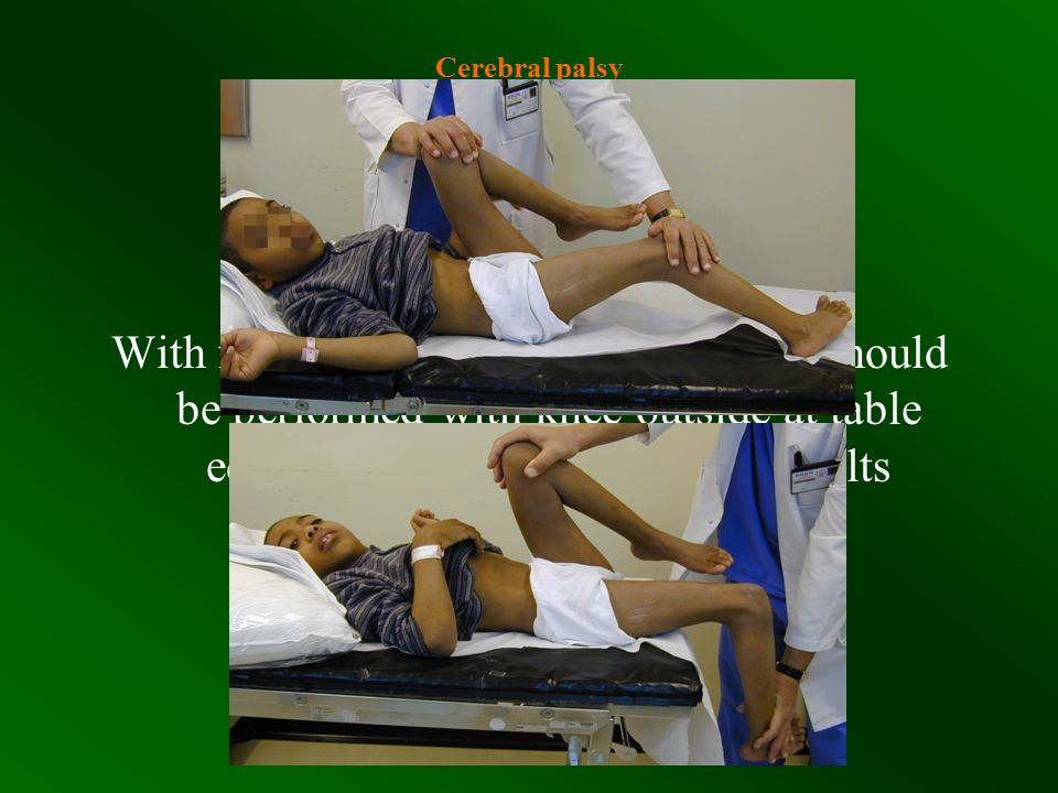Cerebral palsy Clinical Assessment Hip Flexors Staheli Test More accurate Prone position Pelvis over table edge