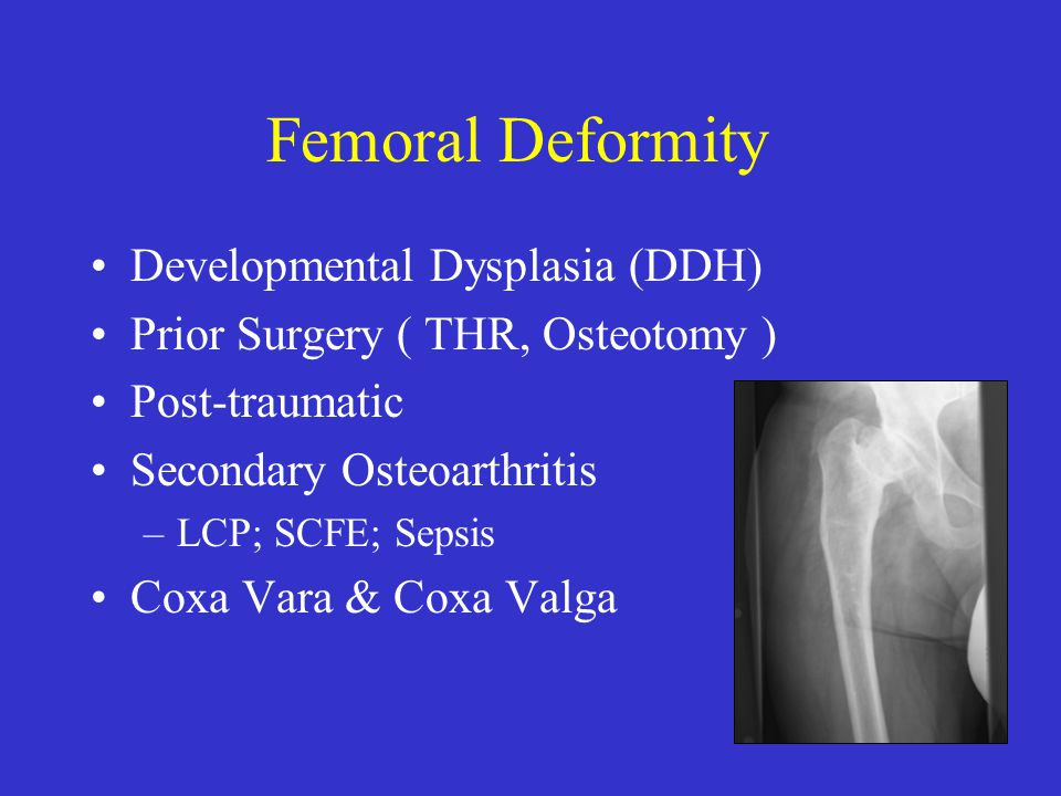 Distal Oblique Femoral Osteotomy Facilitates distal cement removal (>200 mm) Re-directional 60o angle improves rotational stability, maximizes contact, allows cerclage wiring ( Miller, et.al )