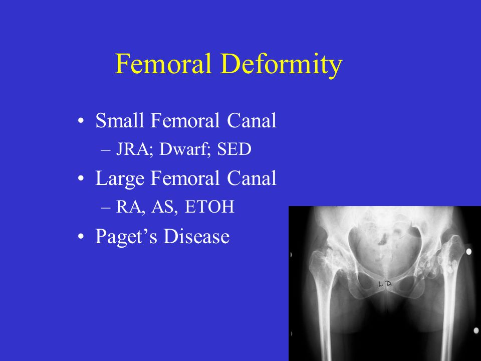 THA In Femoral Deformity Metaphyseal Cemented implants Uncemented modular Uncemented distal fixation Resect deformity, replace with implant