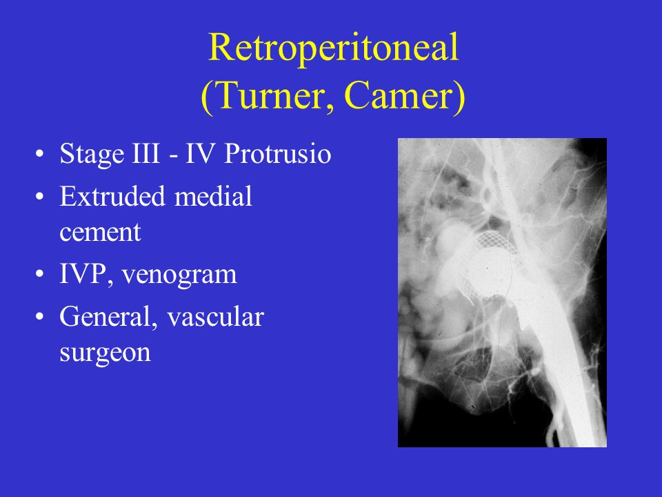 Retroperitoneal (Turner, Camer) Stage III - IV Protrusio Extruded medial cement IVP, venogram General, vascular surgeon