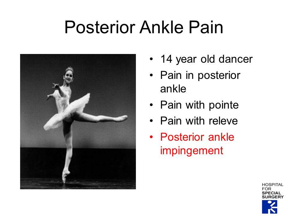 Posterior Ankle Pain 14 year old dancer Pain in posterior ankle Pain with pointe Pain with releve Posterior ankle impingement