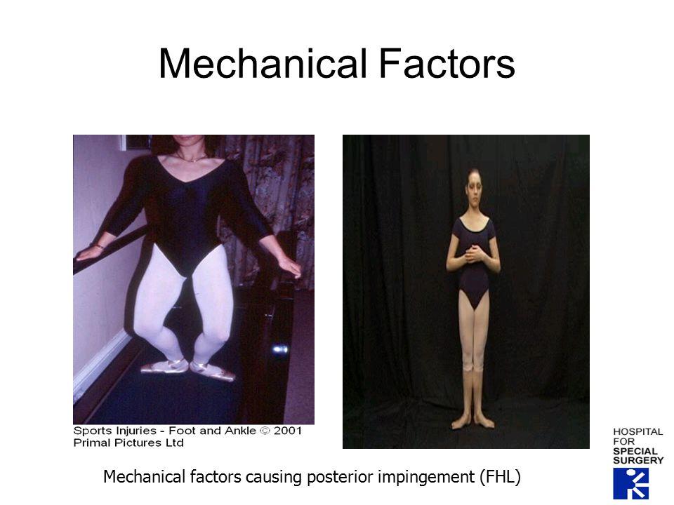 Mechanical Factors Mechanical factors causing posterior impingement (FHL)