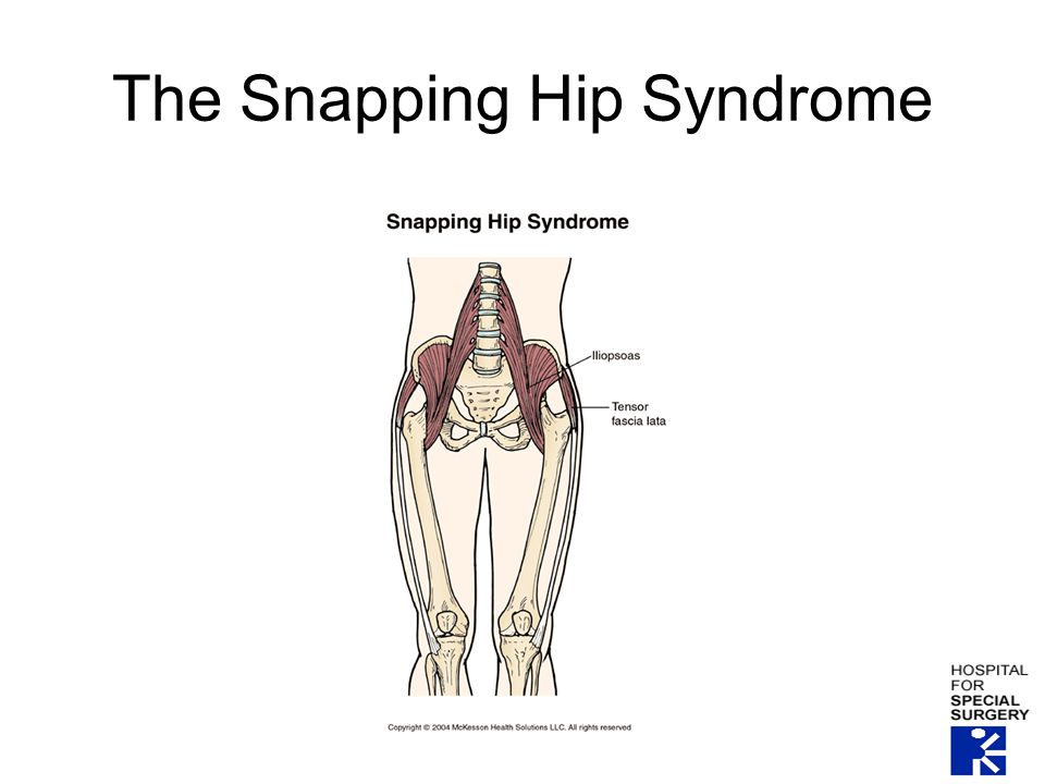 The Snapping Hip Syndrome