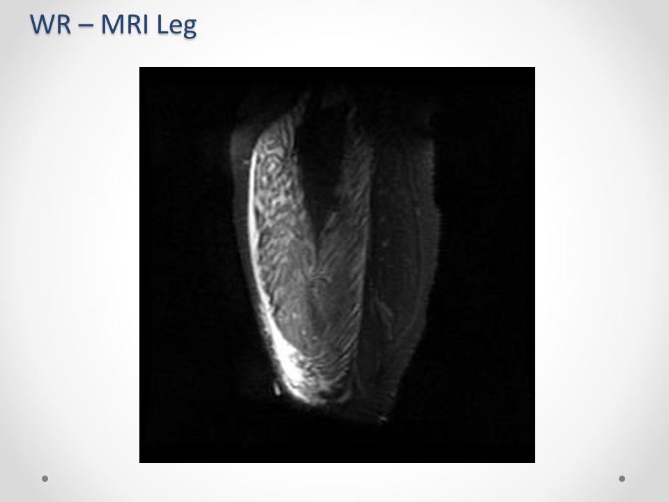 WR – MRI Leg