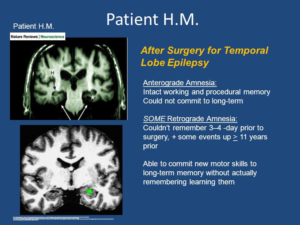 Patient H.M. http://images.google.com/imgres?imgurl=http://dspace.mit.edu/bitstream/handle/1721.1/45580/9-10Spring-2004/NR/rdonlyres/Brain-and-Cogniti