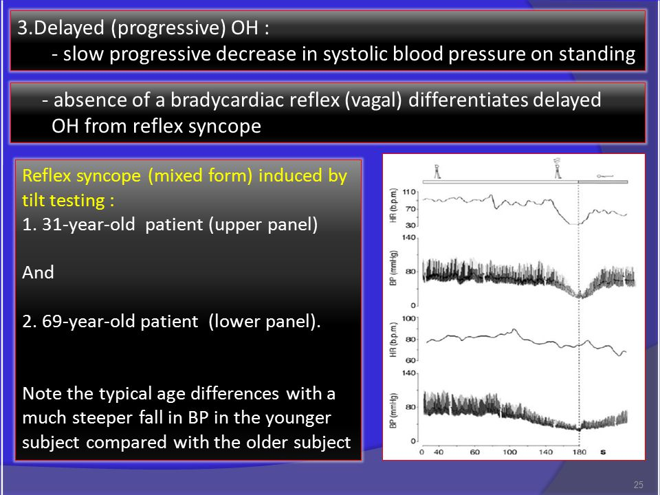 3.Delayed (progressive) OH : - slow progressive decrease in systolic blood pressure on standing - absence of a bradycardiac reflex (vagal) differentiates delayed OH from reflex syncope Reflex syncope (mixed form) induced by tilt testing : 1.