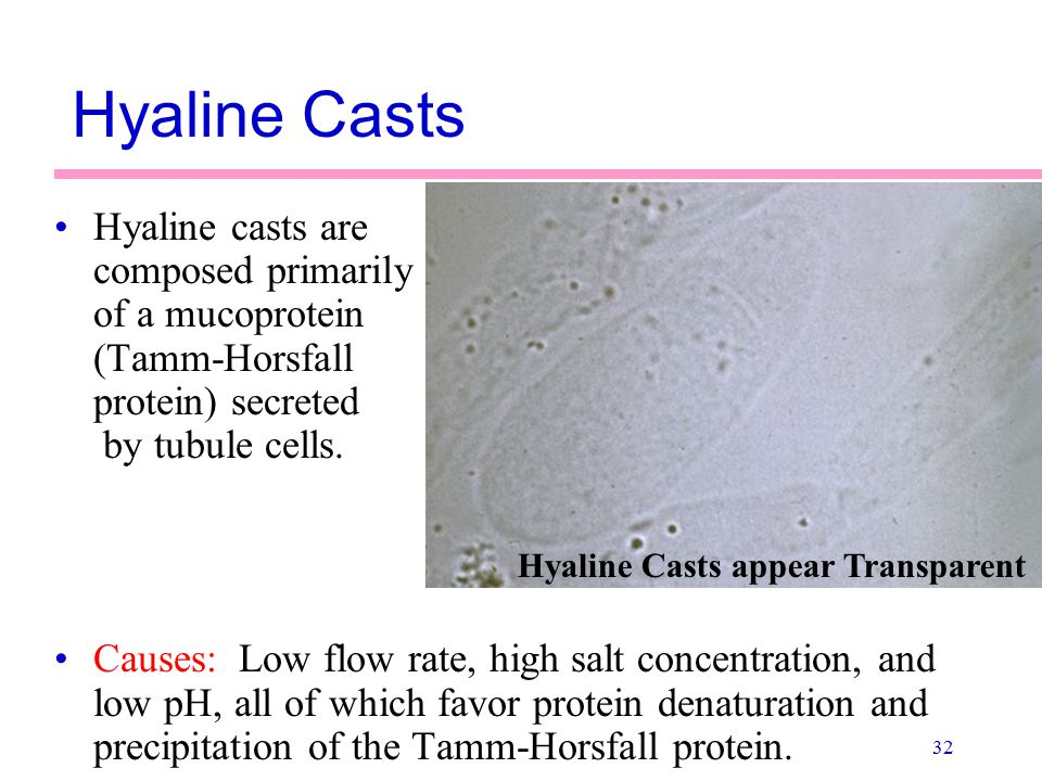 32 Hyaline Casts Hyaline casts are composed primarily of a mucoprotein (Tamm-Horsfall protein) secreted by tubule cells. Causes: Low flow rate, high s