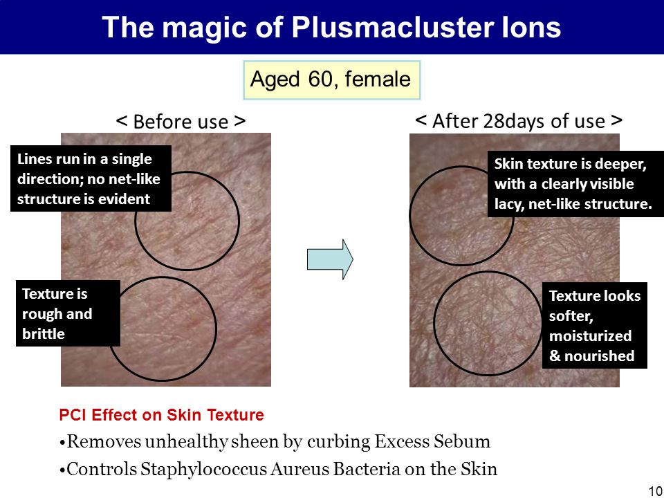 10 The magic of Plusmacluster Ions < Before use > < After 28days of use > Skin texture is deeper, with a clearly visible lacy, net-like structure.