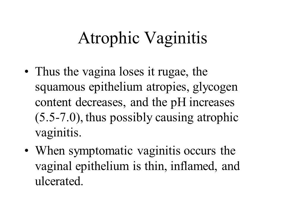 Atrophic Vaginitis Thus the vagina loses it rugae, the squamous epithelium atropies, glycogen content decreases, and the pH increases (5.5-7.0), thus