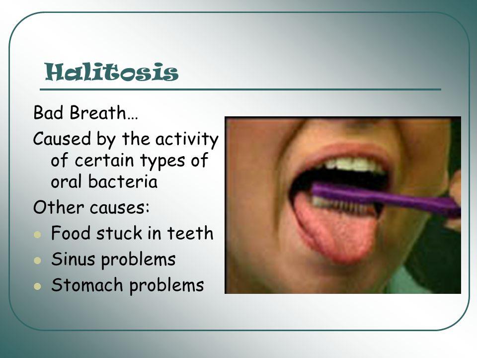 Dental Hygiene What causes cavities.