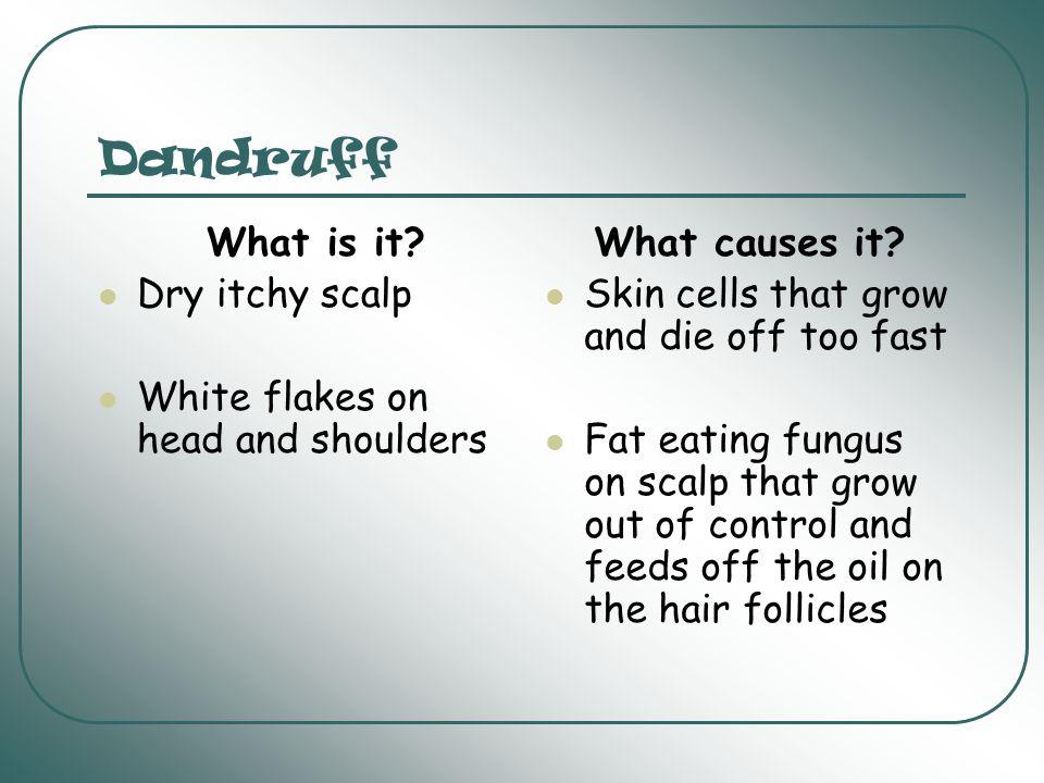 Hair How do I choose a shampoo.Is my hair Oily, or is my hair Dry.