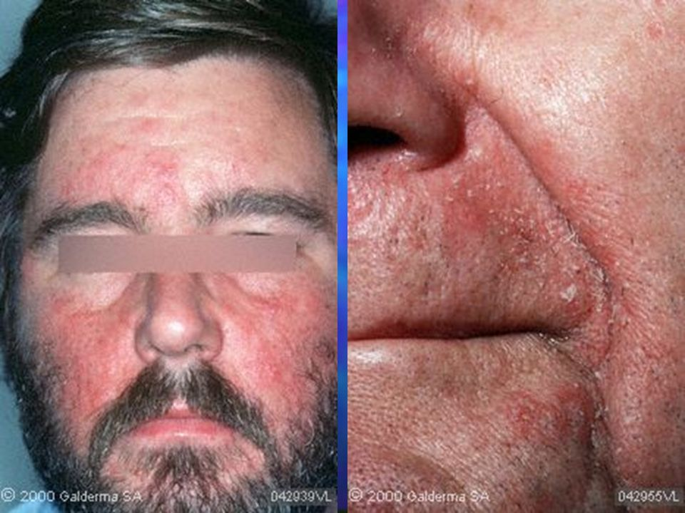 Drug-induced psoriasis May be induced by many drugs: beta blockers, lithium, and antimalarials, terbinafine, calcium channel blockers, captopril, glyburide, and lipid lowering agents such as gemfibrozil May be induced by many drugs: beta blockers, lithium, and antimalarials, terbinafine, calcium channel blockers, captopril, glyburide, and lipid lowering agents such as gemfibrozil