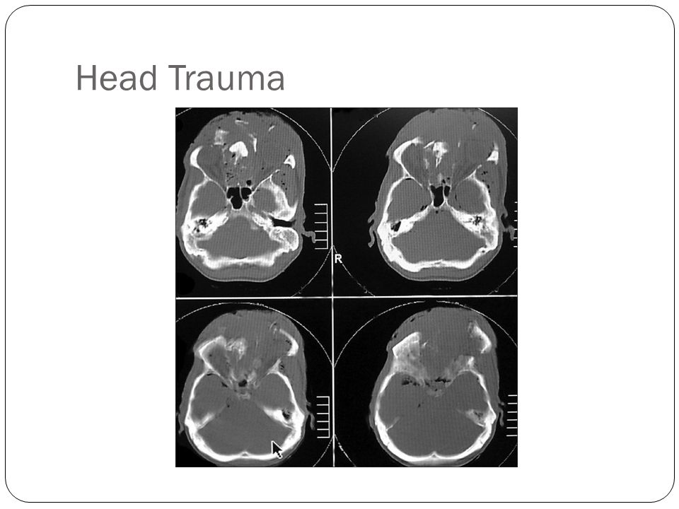 Head Trauma