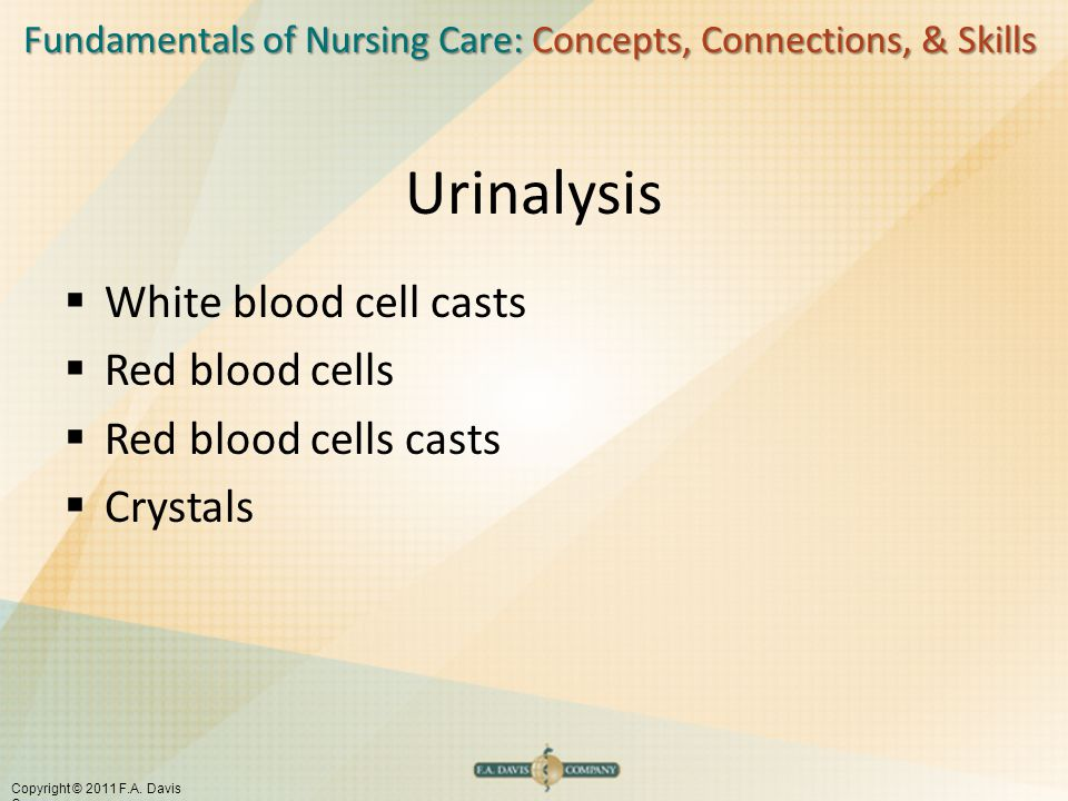 Fundamentals of Nursing Care: Concepts, Connections, & Skills Copyright © 2011 F.A. Davis Company Urinalysis  White blood cell casts  Red blood cell