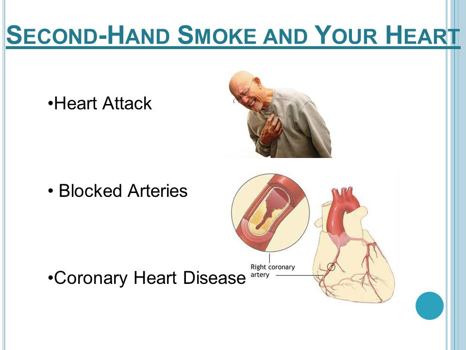 Heart Attack Blocked Arteries Coronary Heart Disease S ECOND -H AND S MOKE AND Y OUR H EART