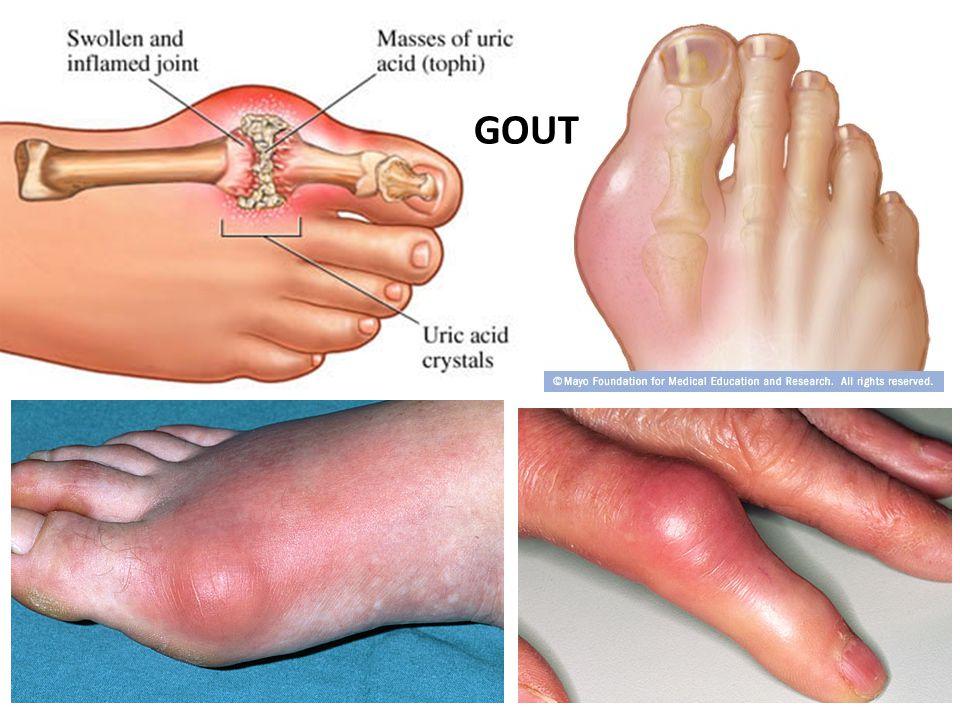 Gout GOUT