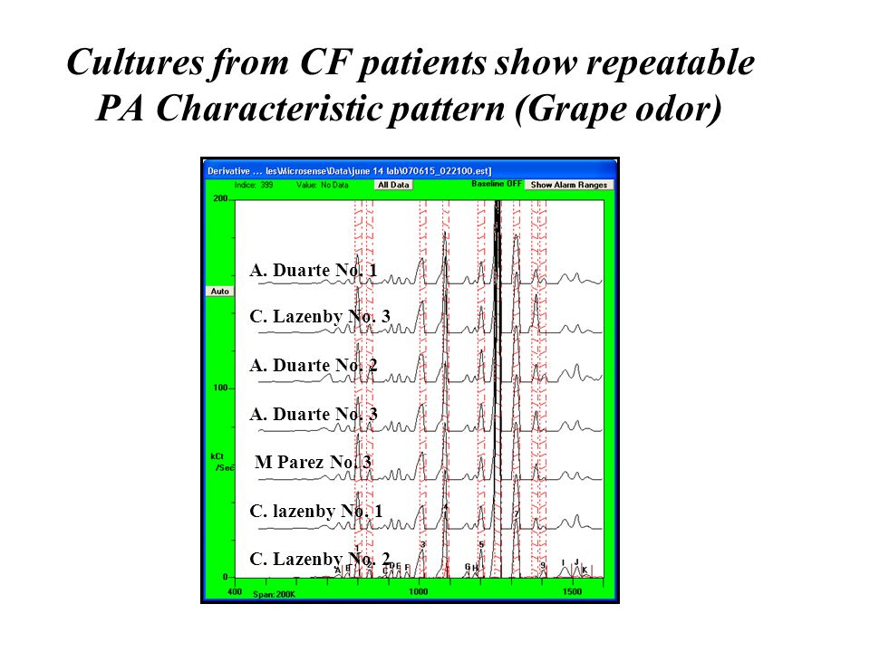 Cultures from CF patients show repeatable PA Characteristic pattern (Grape odor) A. Duarte No. 1 C. Lazenby No. 3 A. Duarte No. 2 A. Duarte No. 3 M Pa