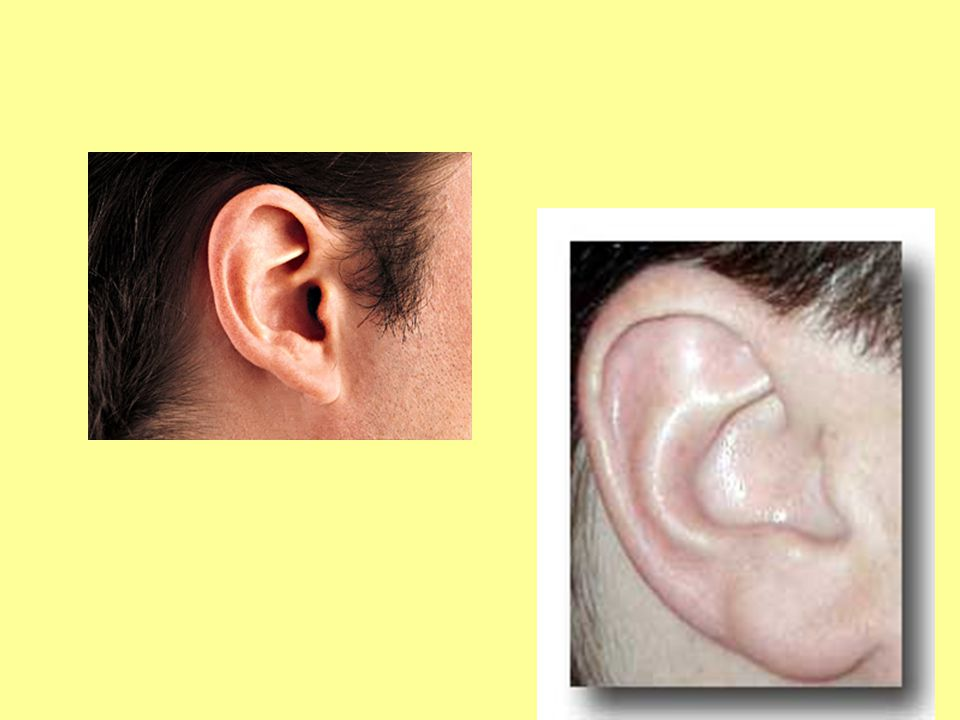 EXTERNAL AUDITORY CANAL The tube through which sound travels to the eardrum.