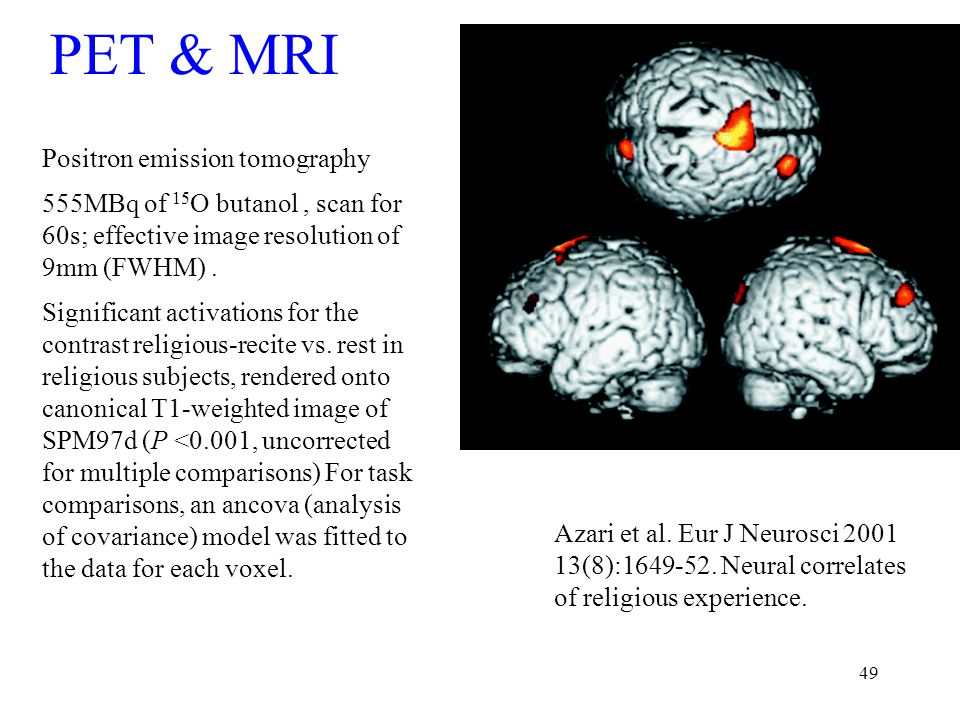 49 PET & MRI Positron emission tomography 555MBq of 15 O butanol, scan for 60s; effective image resolution of 9mm (FWHM).