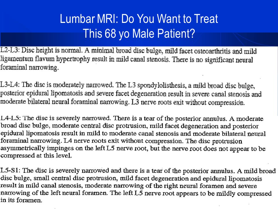 Lumbar MRI: Do You Want to Treat This 68 yo Male Patient