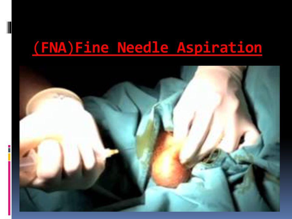(FNA)Fine Needle Aspiration