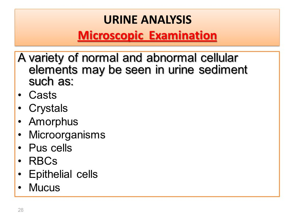 A variety of normal and abnormal cellular elements may be seen in urine sediment such as: Casts Crystals Amorphus Microorganisms Pus cells RBCs Epithe