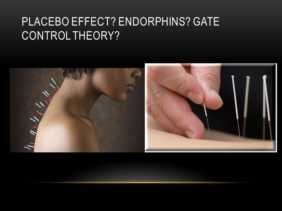 PLACEBO EFFECT ENDORPHINS GATE CONTROL THEORY