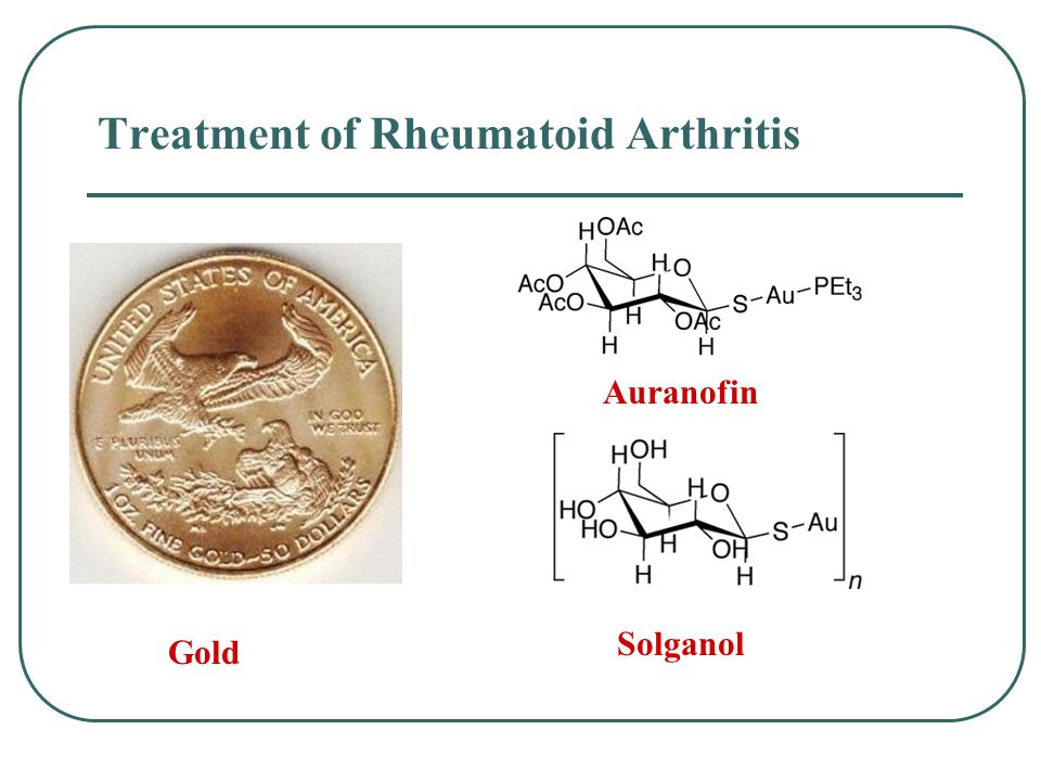 Treatment of Rheumatoid Arthritis Auranofin Solganol Gold