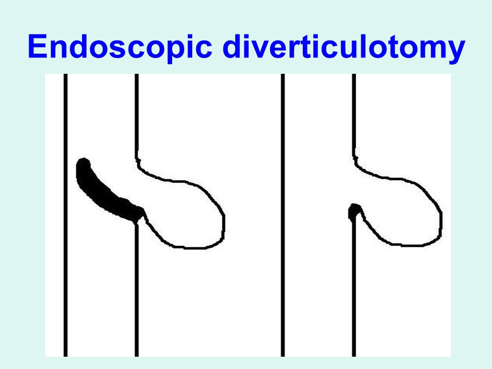 Endoscopic diverticulotomy
