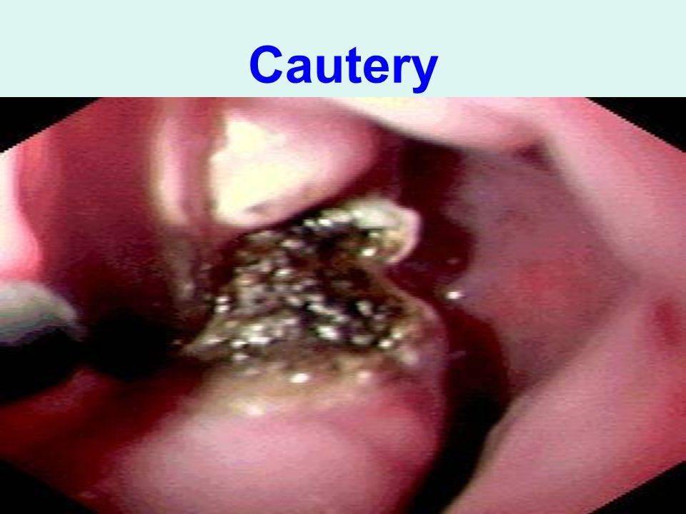 Cautery