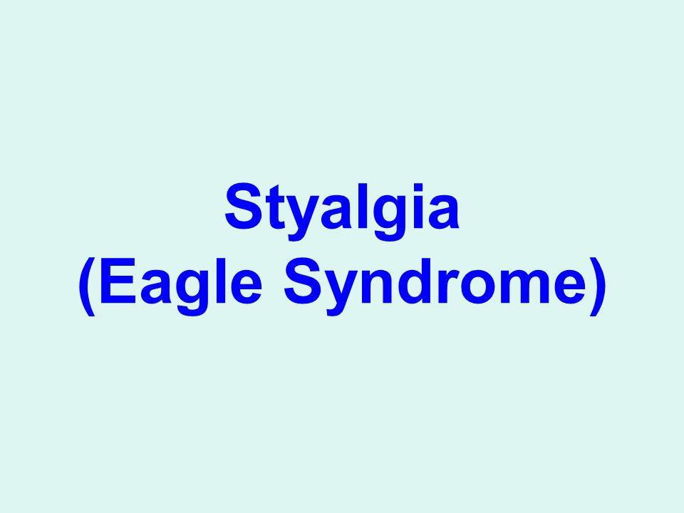 Styalgia (Eagle Syndrome)