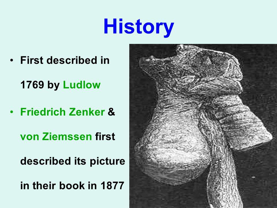 History First described in 1769 by Ludlow Friedrich Zenker & von Ziemssen first described its picture in their book in 1877
