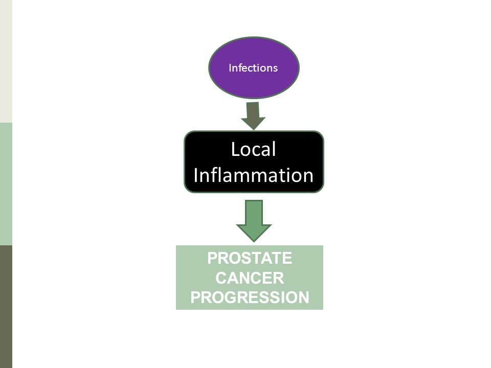 Local Inflammation Infections PROSTATE CANCER PROGRESSION
