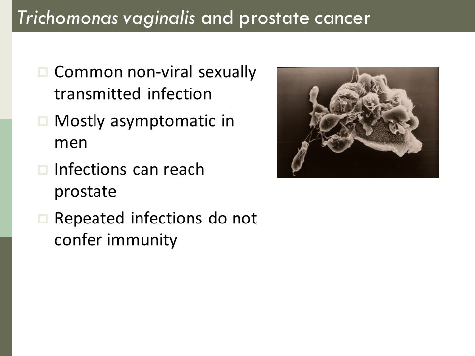 Trichomonas vaginalis and prostate cancer  Common non-viral sexually transmitted infection  Mostly asymptomatic in men  Infections can reach prostate  Repeated infections do not confer immunity
