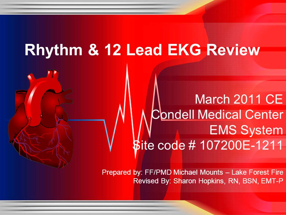 Objectives Upon successful completion of this module, the EMS provider will be able to: Identify the components of a rhythm strip Identify what the components represent on the rhythm strip Identify criteria for sinus rhythms Identify criteria for atrial rhythms Identify AV/junctional rhythms