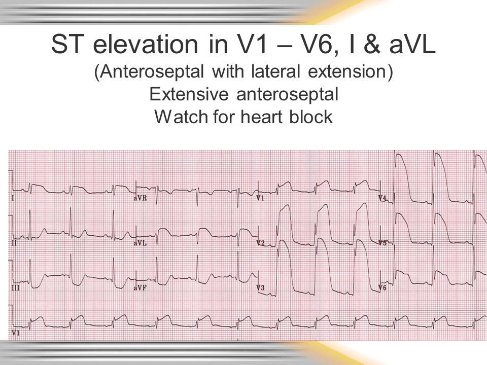 ST elevation in V1 – V6, I & aVL (Anteroseptal with lateral extension) Extensive anteroseptal Watch for heart block