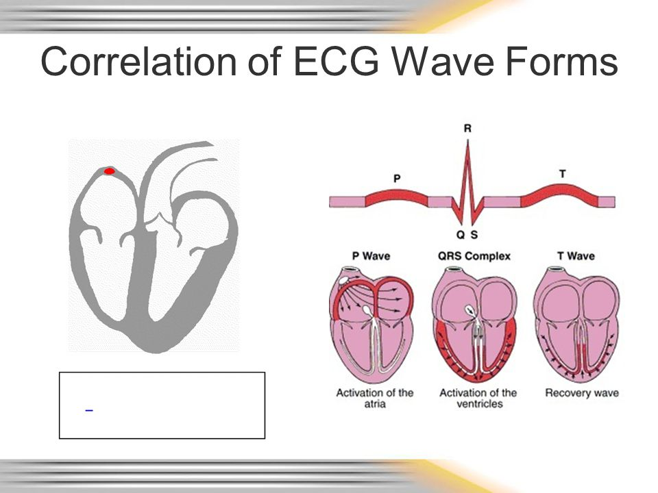 Correlation of ECG Wave Forms