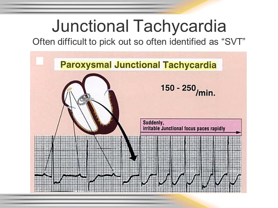 """Junctional Tachycardia Often difficult to pick out so often identified as """"SVT"""""""