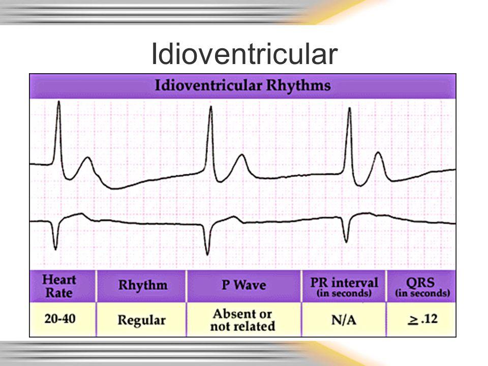 Idioventricular
