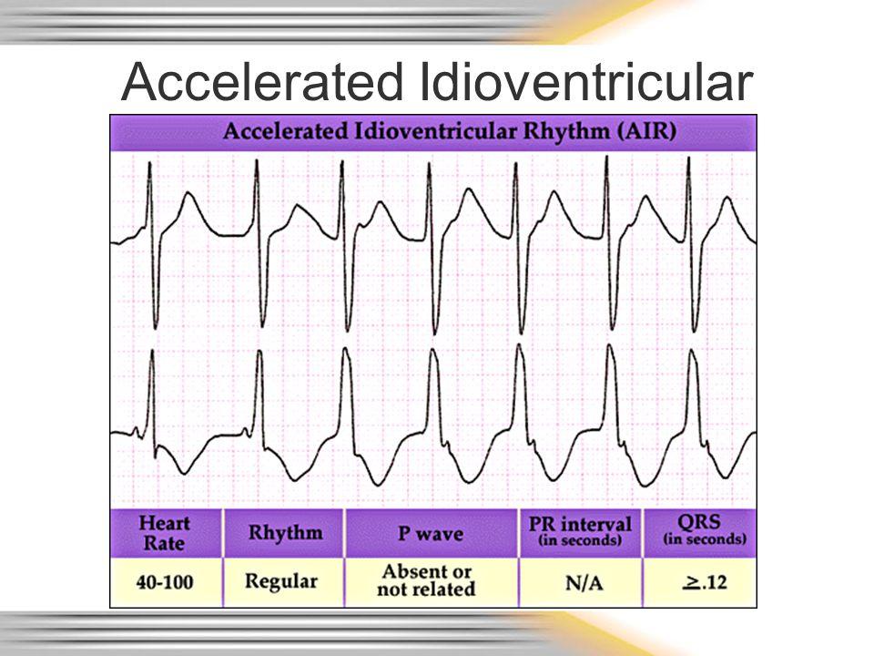 Accelerated Idioventricular