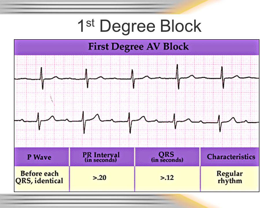 1 st Degree Block