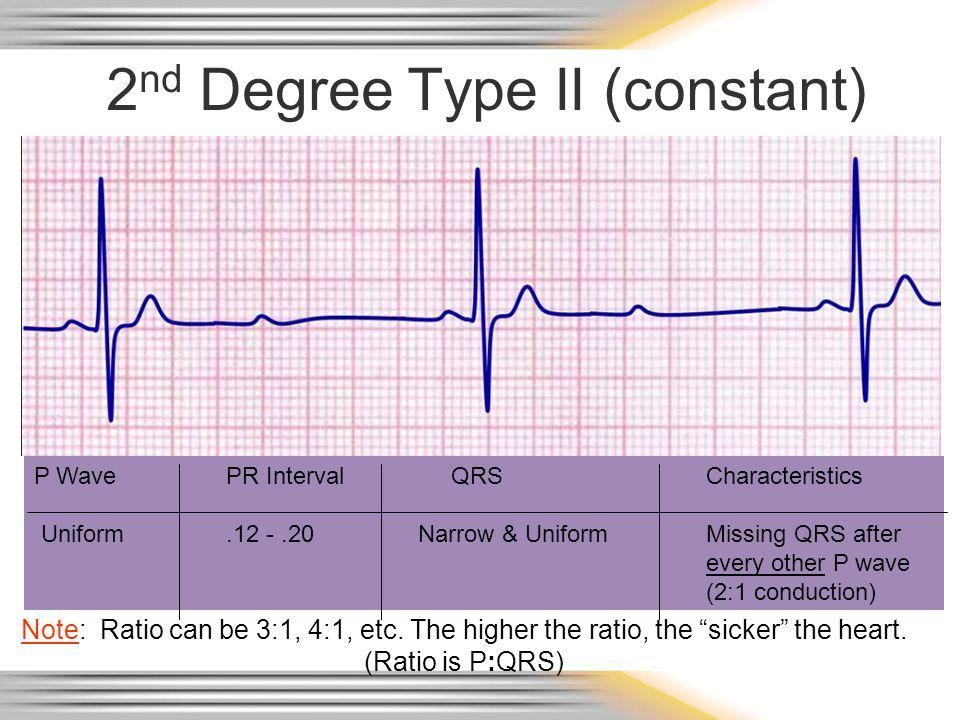 2 nd Degree Type II (constant) P WavePR Interval QRSCharacteristics Uniform.12 -.20Narrow & UniformMissing QRS after every other P wave (2:1 conductio