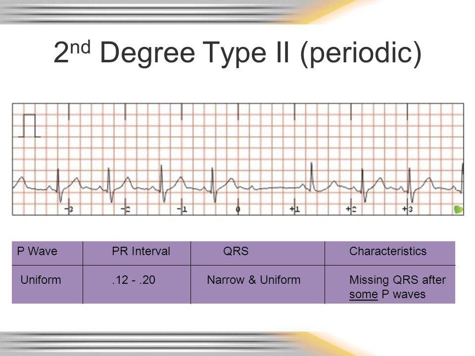 2 nd Degree Type II (periodic) P WavePR Interval QRSCharacteristics Uniform.12 -.20Narrow & UniformMissing QRS after some P waves