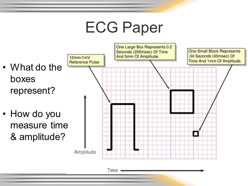 ECG Paper What do the boxes represent? How do you measure time & amplitude?