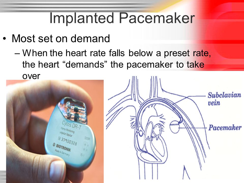 """51 Implanted Pacemaker Most set on demand –When the heart rate falls below a preset rate, the heart """"demands"""" the pacemaker to take over"""