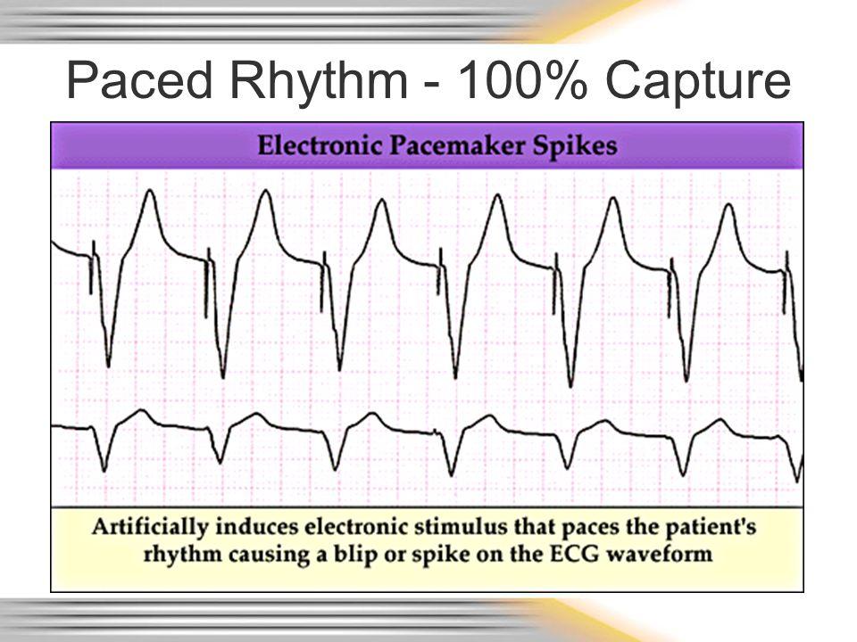 Paced Rhythm - 100% Capture