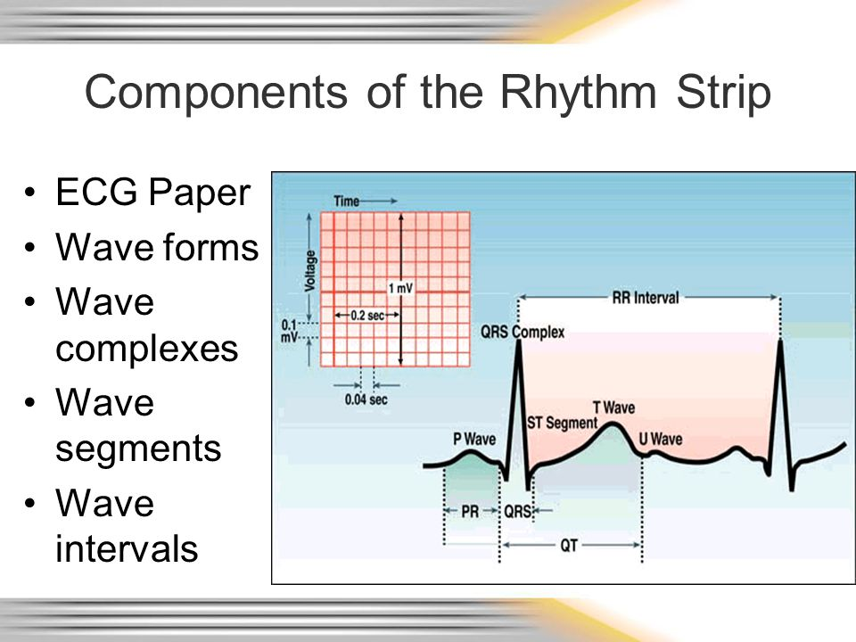 Wave Forms, Complexes, Segments & Intervals P wave – atrial depolarization QRS – Ventricular depolarization T wave – Ventricular repolarization
