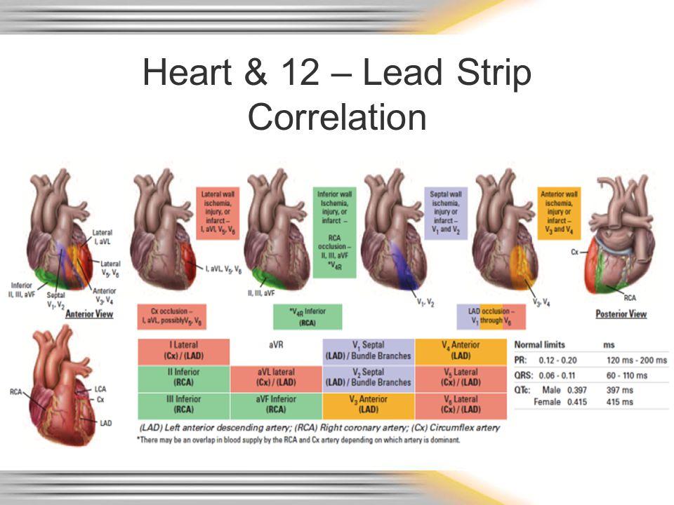 Heart & 12 – Lead Strip Correlation