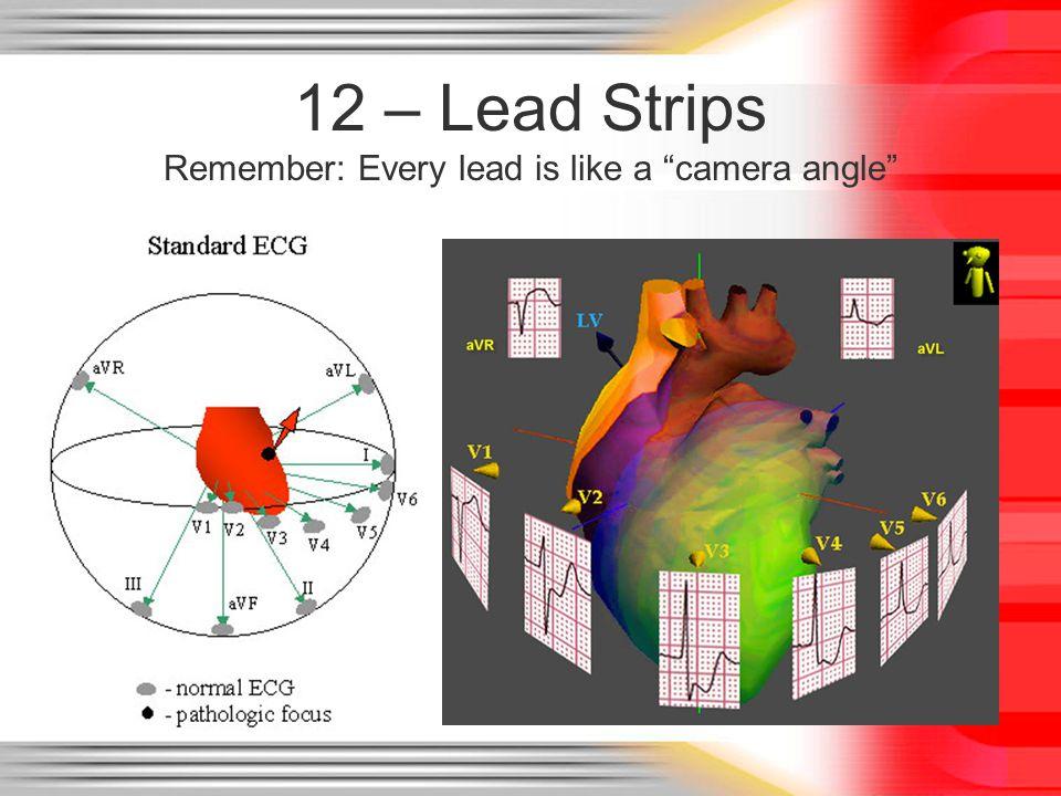 "12 – Lead Strips Remember: Every lead is like a ""camera angle"""